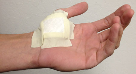 Blisters are Nature's Band-Aid for Burns :: Healthy Outlook